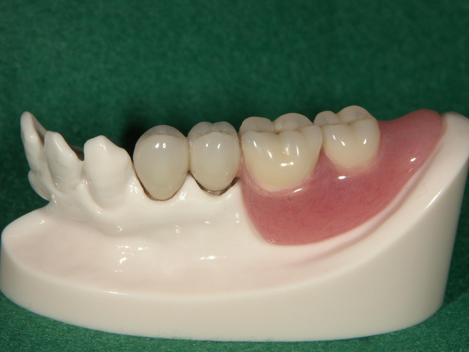 コーヌス・テレスコープ 義歯
