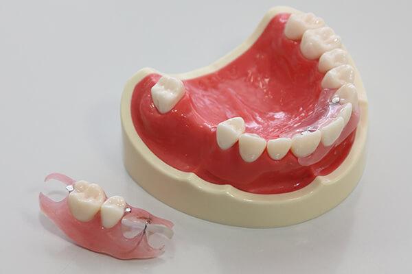 入れ歯の治療期間