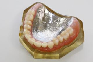金属床 義歯